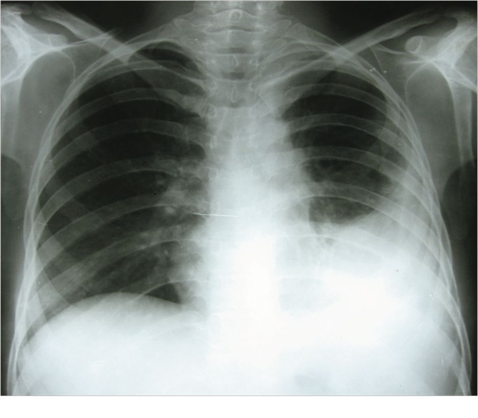 Gallery Chest X Ray Pleural Effusion